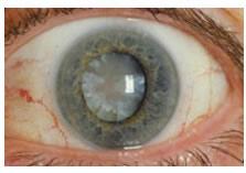 ojo con catarata