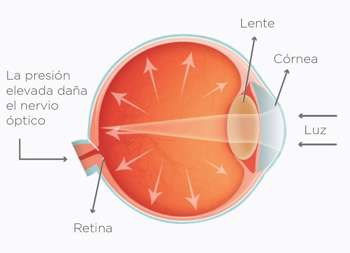 Glaucoma Pasteur
